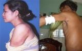 Vụ đánh người gây thương tích ở TT.Tân Phước Khánh: Đang trong thời gian xác minh, giải quyết